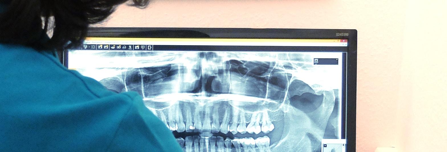 Röntgenaufnahme Zähne